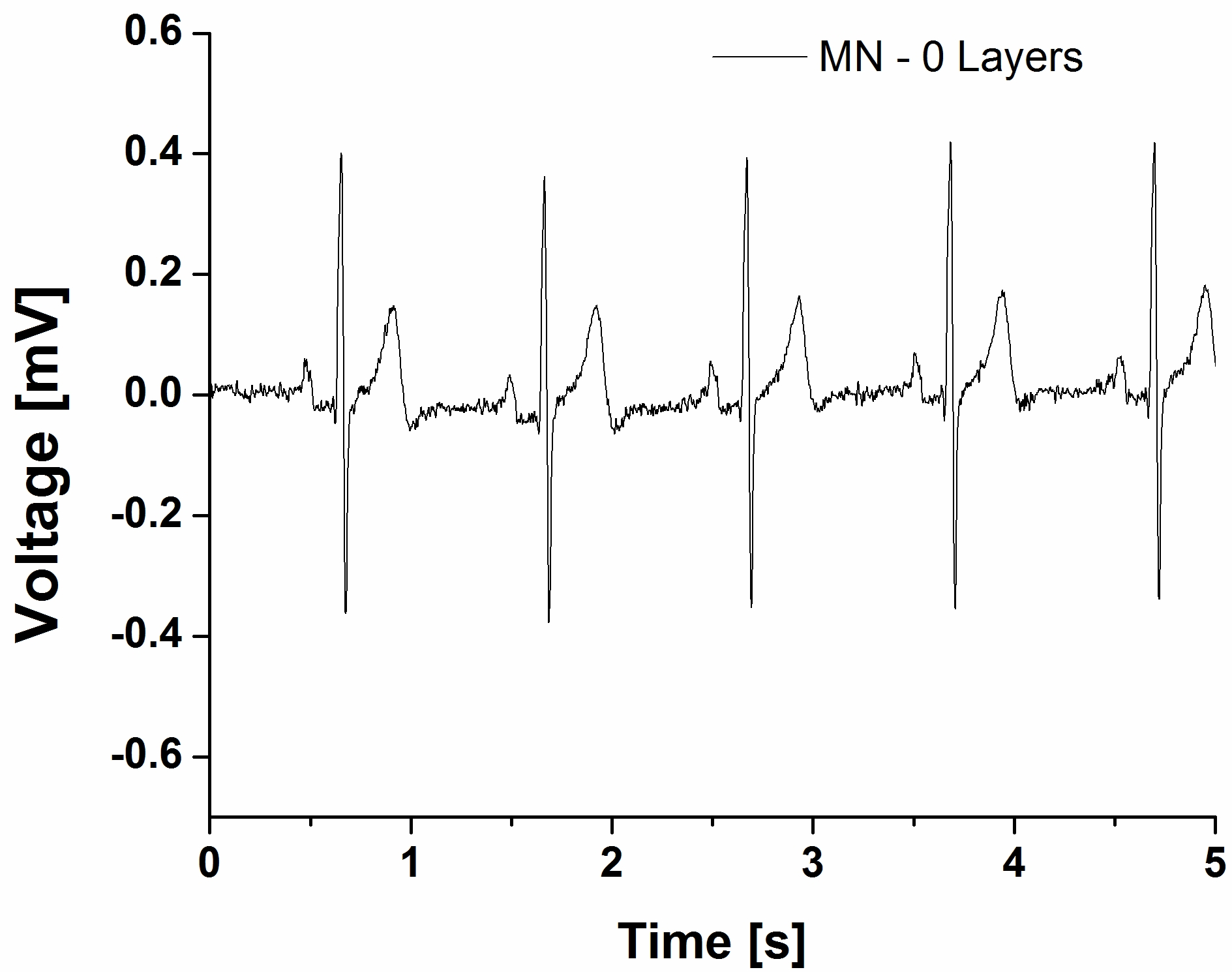 Typical ECG signal recorded using Tyndall's microneedle-based dry electrodes