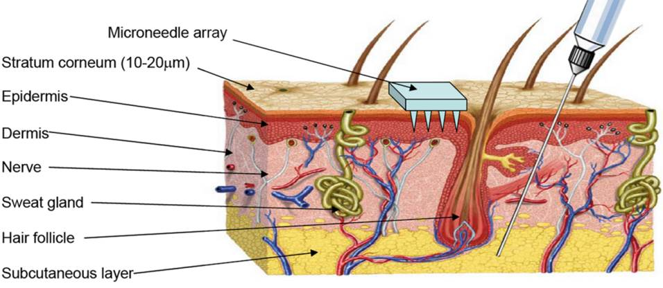 Structure of human skin – although microneedle arrays penetrate the outermost layer, they do not stimulate the nerve endings beneath